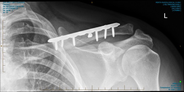 JHC XRAY LEFT CLAVICLE 0003